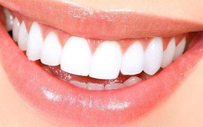 ¡SAL DE DUDAS! ¿Es realmente sano tener los dientes muy blancos?